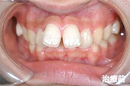 上顎前突症 治療前写真